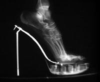 Stiletto x-ray